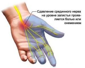 tsindrom1 300x240 Остеопатія при тунельних синдромах