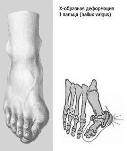 Ploskostopie 2 253x300 Плоскостопість і больові синдроми