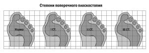 Ploskostopie 5 300x107 Плоскостопість і больові синдроми