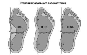 Ploskostopie 6 300x190 Плоскостопість і больові синдроми