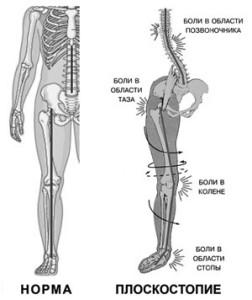 Ploskostopie 9 252x300 Плоскостопість і больові синдроми