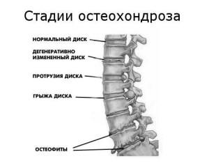 osteohondroz1 300x241 Що таке остеохондроз