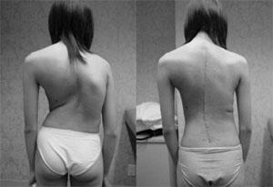 scolioz 2jpg Остеопатическая помощь при сколиозе